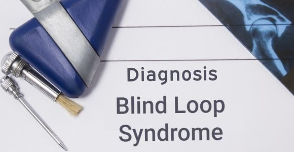 What is Blind Loop Syndrome?
