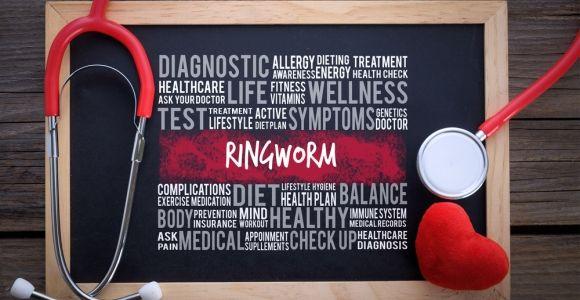 Symptoms of Ringworm