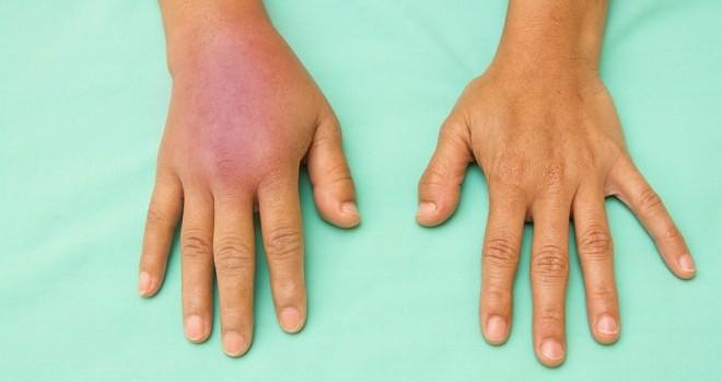 swelling symptoms cellulitis