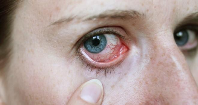 cellulitis symptoms