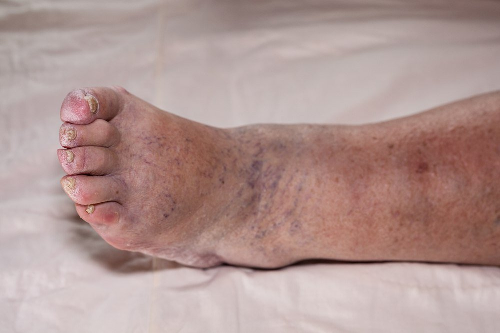 skin issues deep vein thrombosis