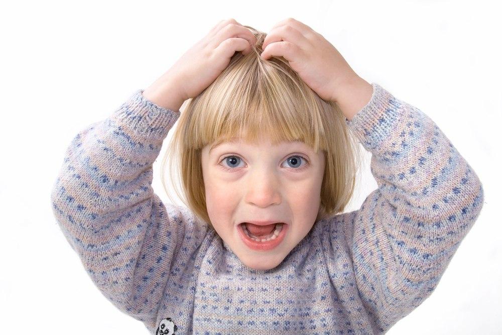scalp head lice