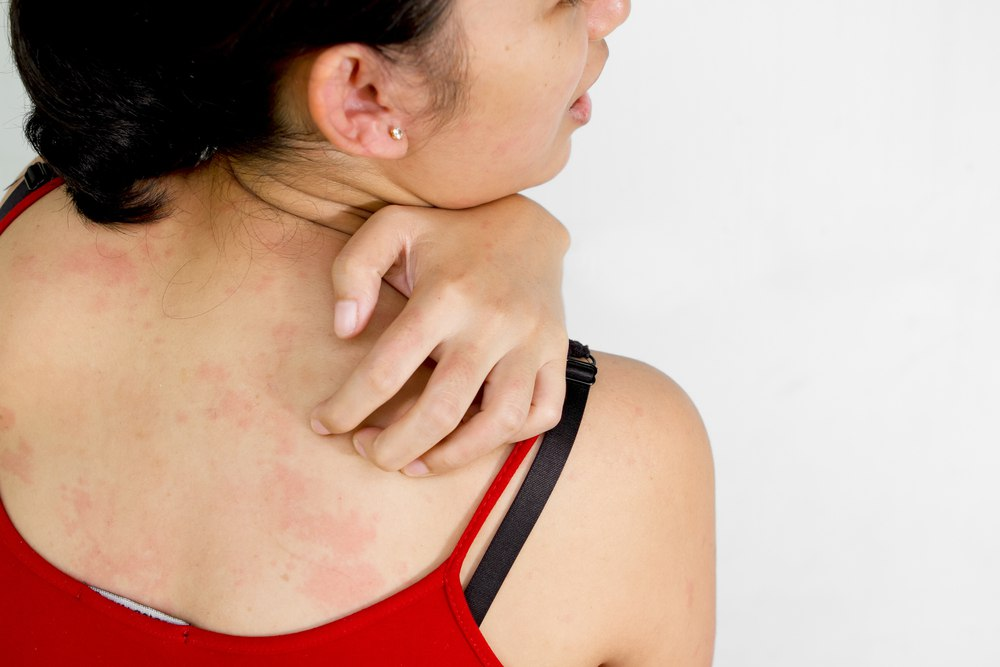 strep throat symptom
