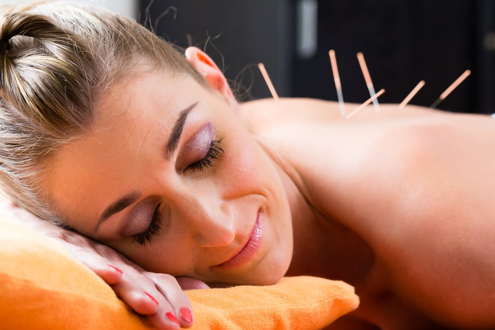 acupuncture for depression