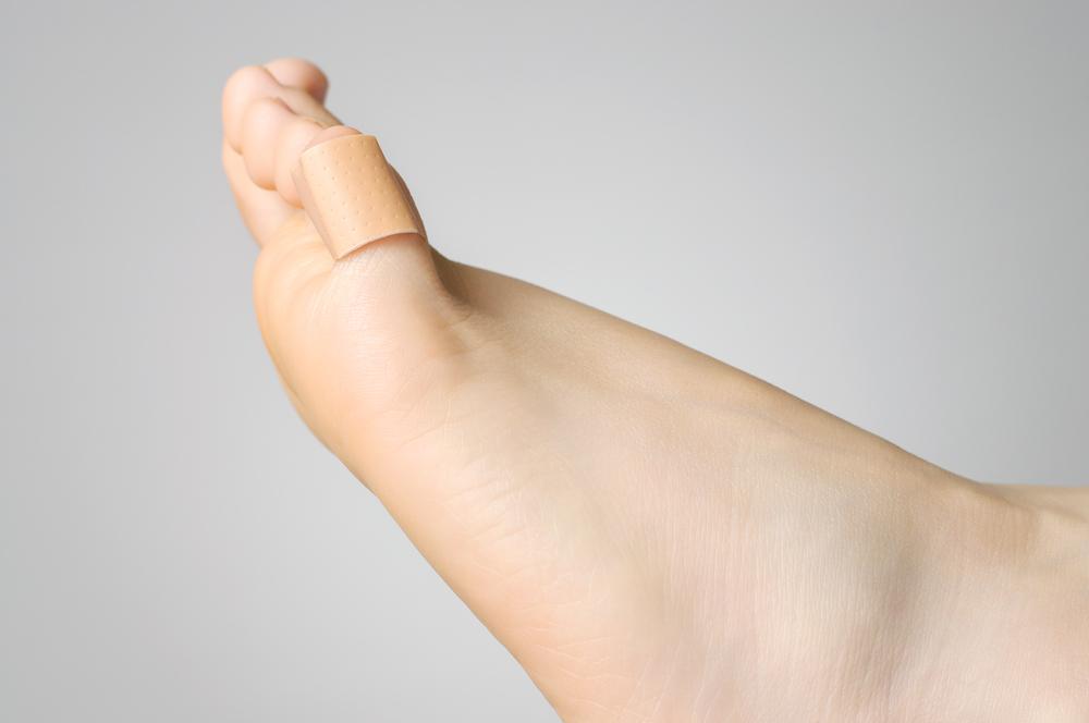 ingrown toenails treatment
