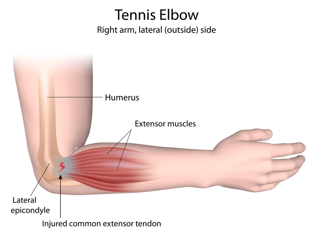 physio tennis elbow