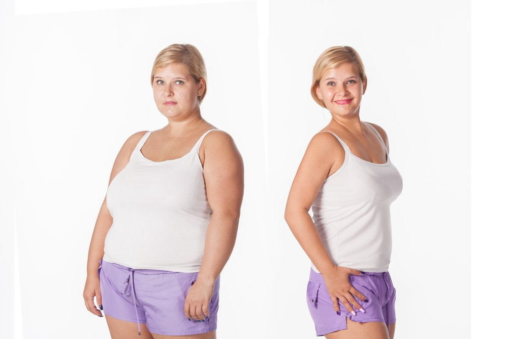 weight loss sciatic