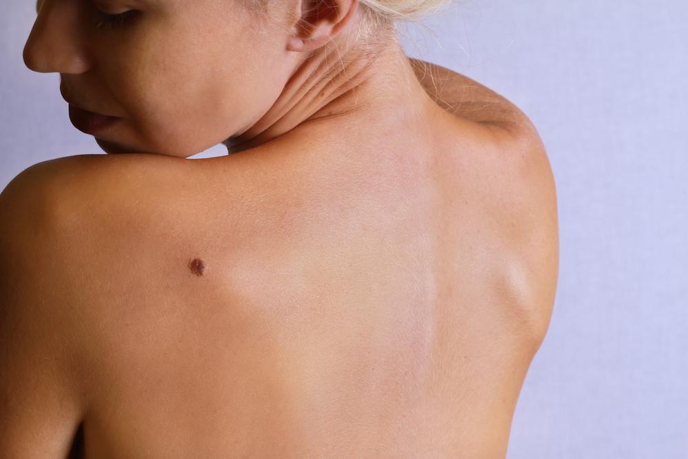 10 Symptoms of Melanoma - Facty Health