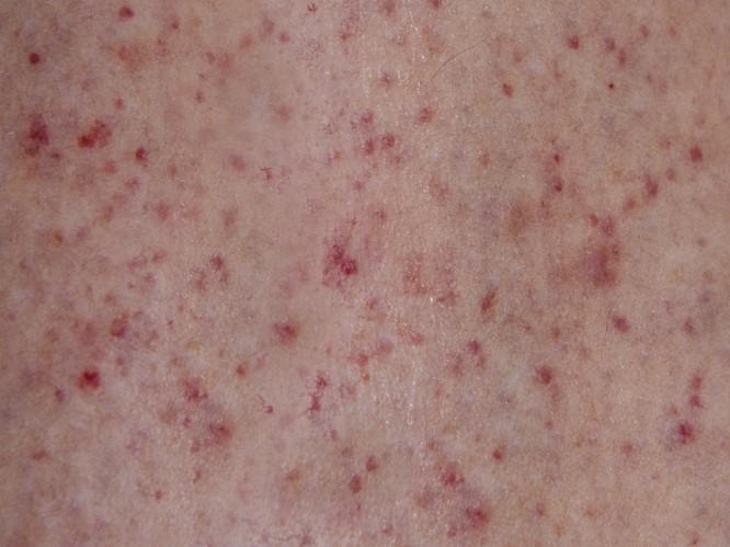 meningitis-skin-rash