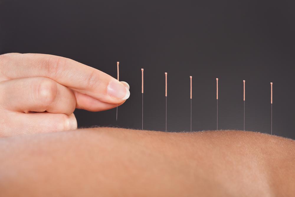 acupuncture Diarrhea