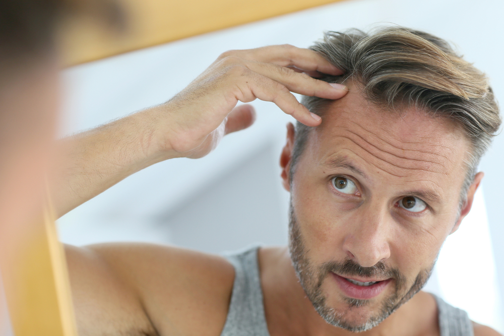 ringworm hair loss