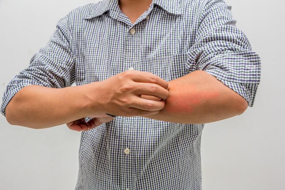 ringworm itch
