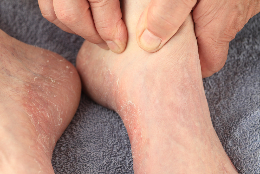 ringworm peeling skin