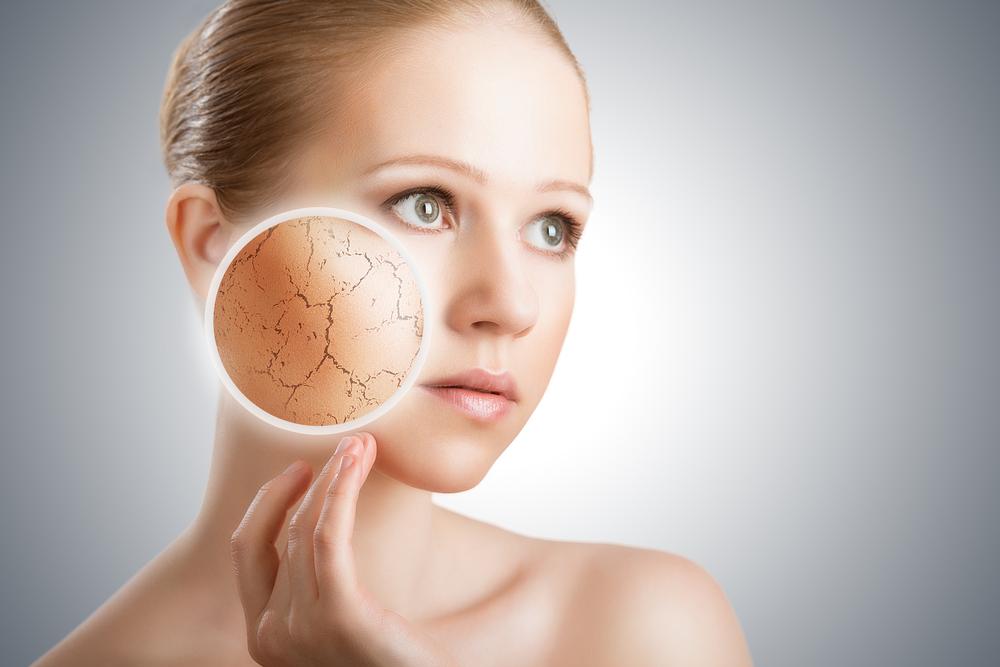 symptom of eczema