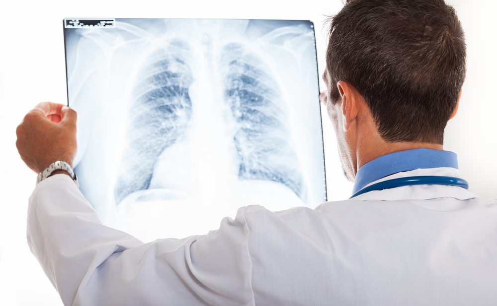 genetics lung cancer
