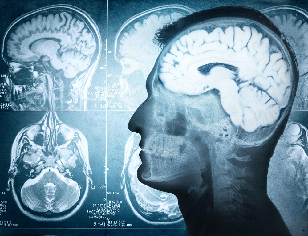 malformations cerebral palsy
