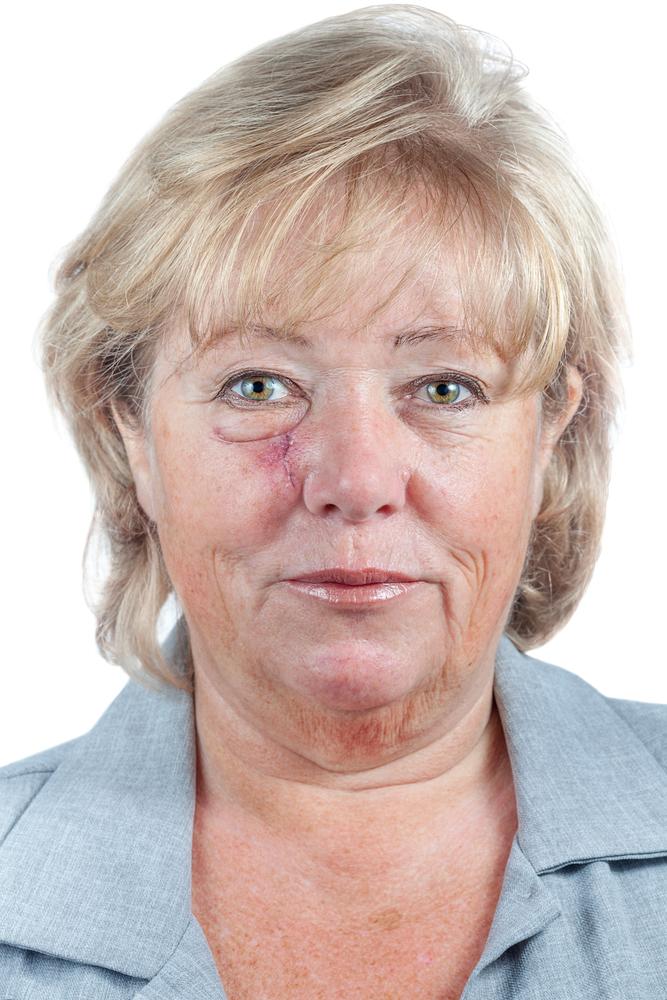 surgery skin cancer