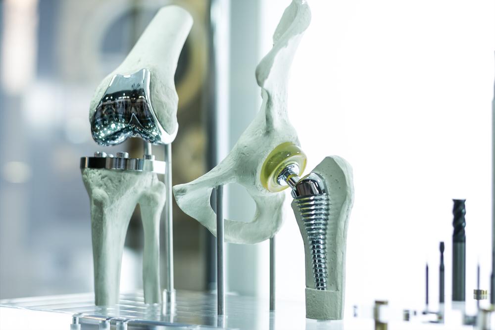 psoriatic arthritis surgery