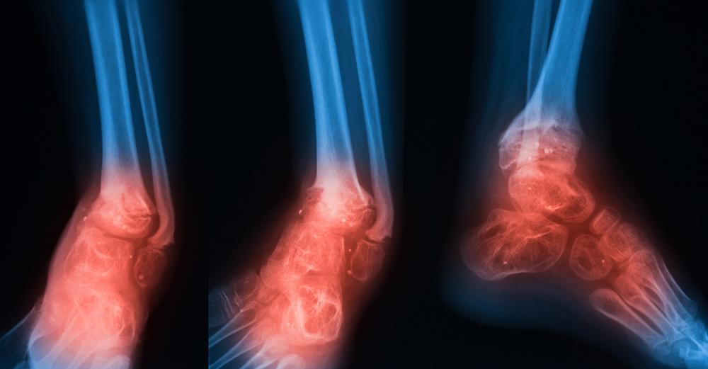function Osteomyelitis