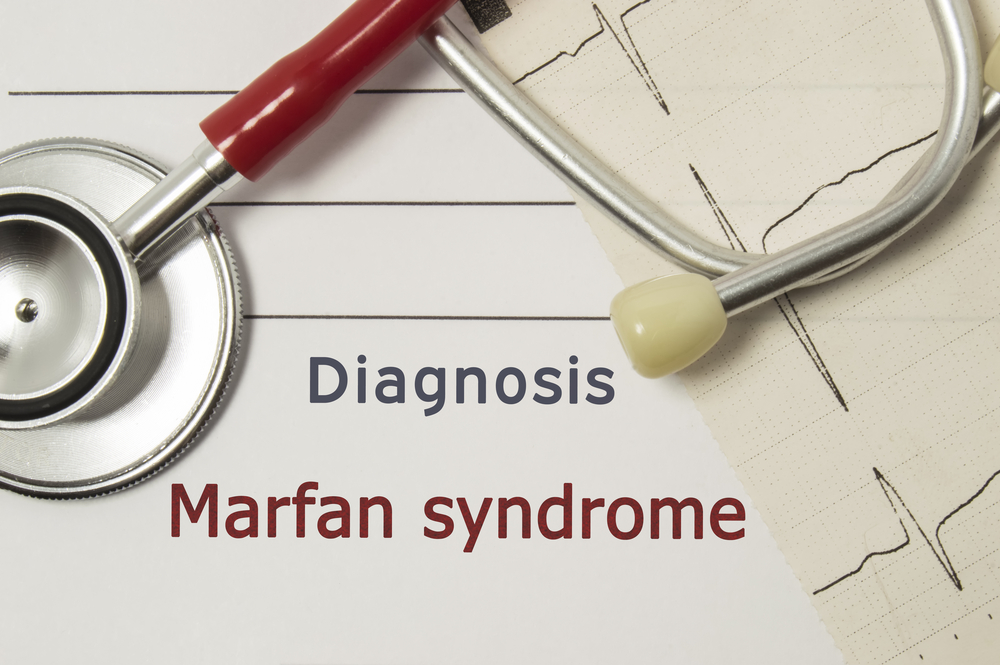 stretch marfan syndrome