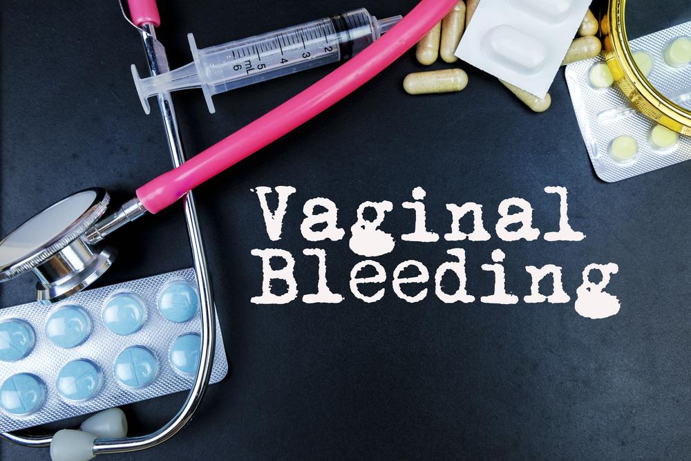 bleeding symptoms of trichomoniasis