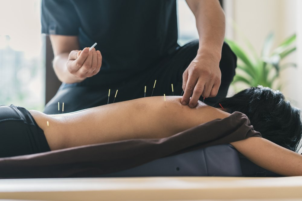 Spinal Stenosis acupuncture