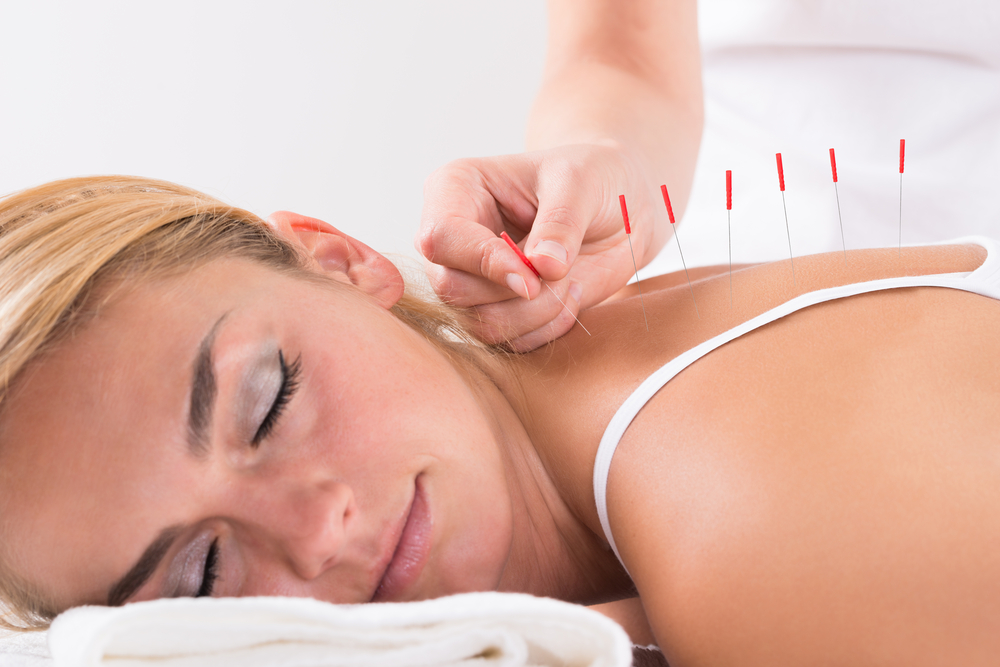 acupuncture inflammation