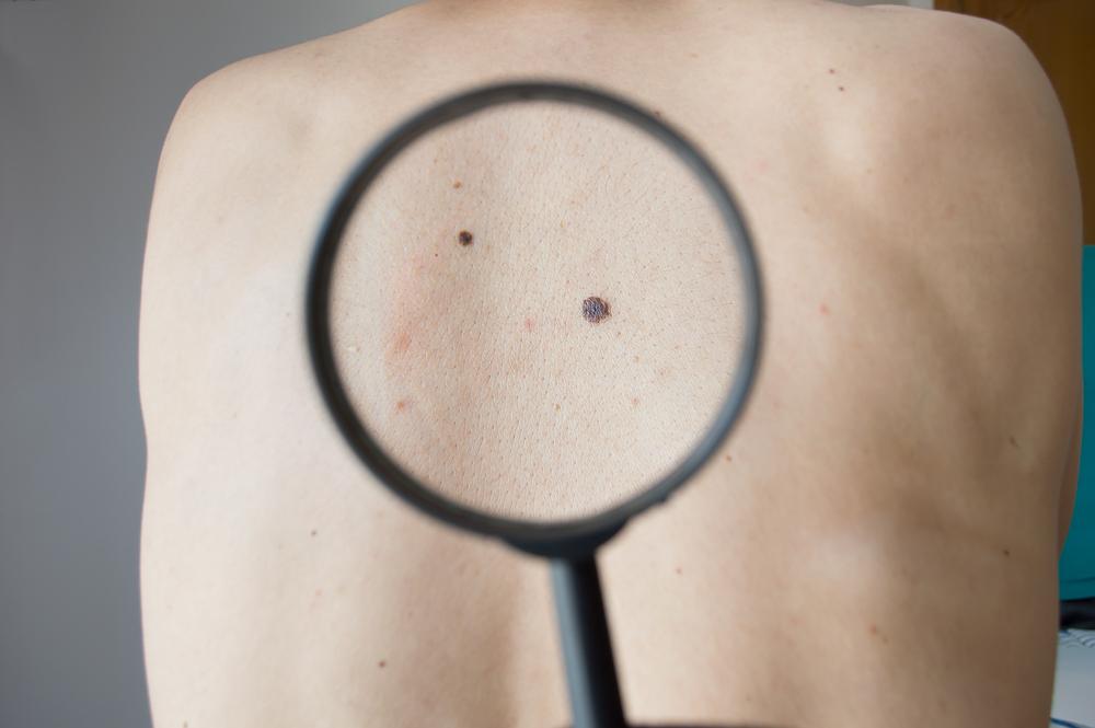 Kaposi Sarcoma lesion