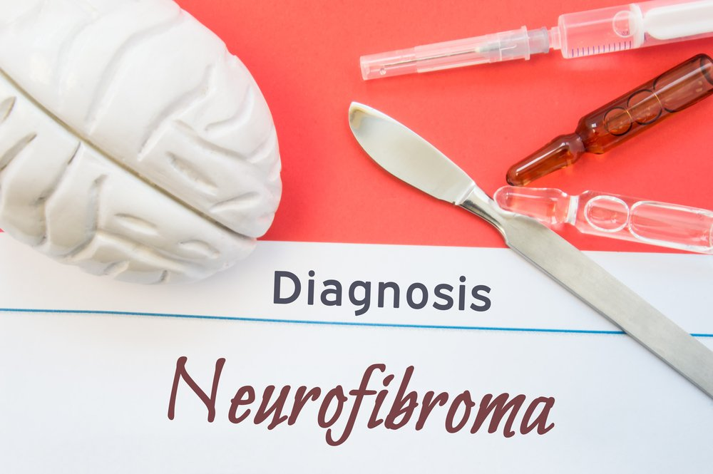 diagnosis neurofibromatosis