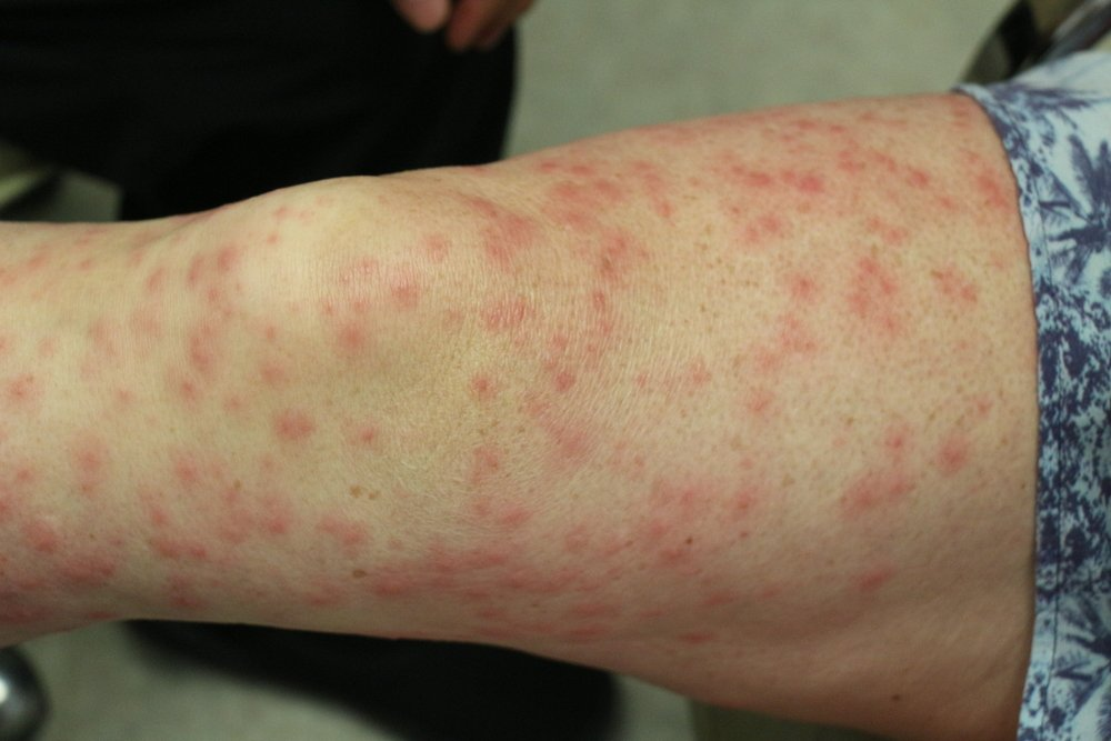 rashes symptoms of vasculitis