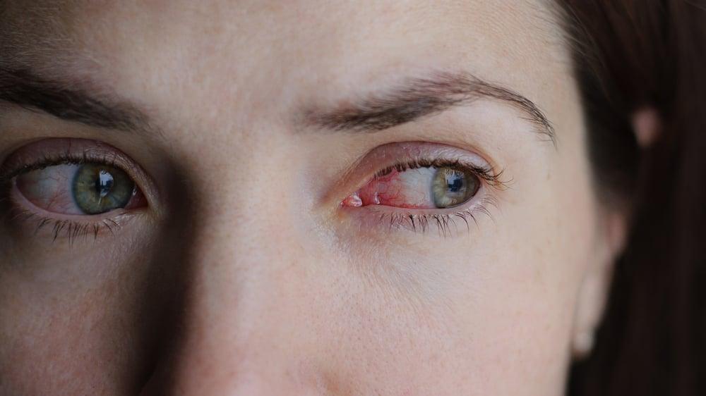 pain symptoms of tetanus