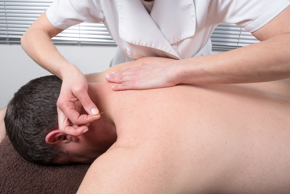 acupuncture for Erectile dysfunction