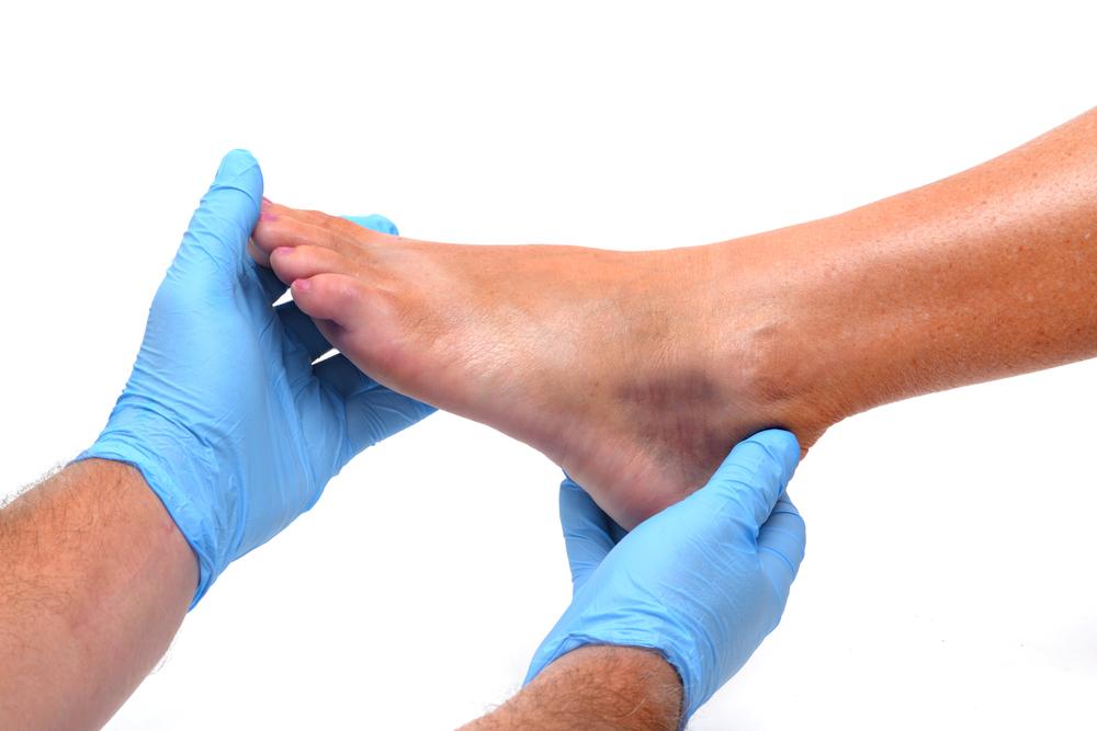 bruising Ankle Sprain