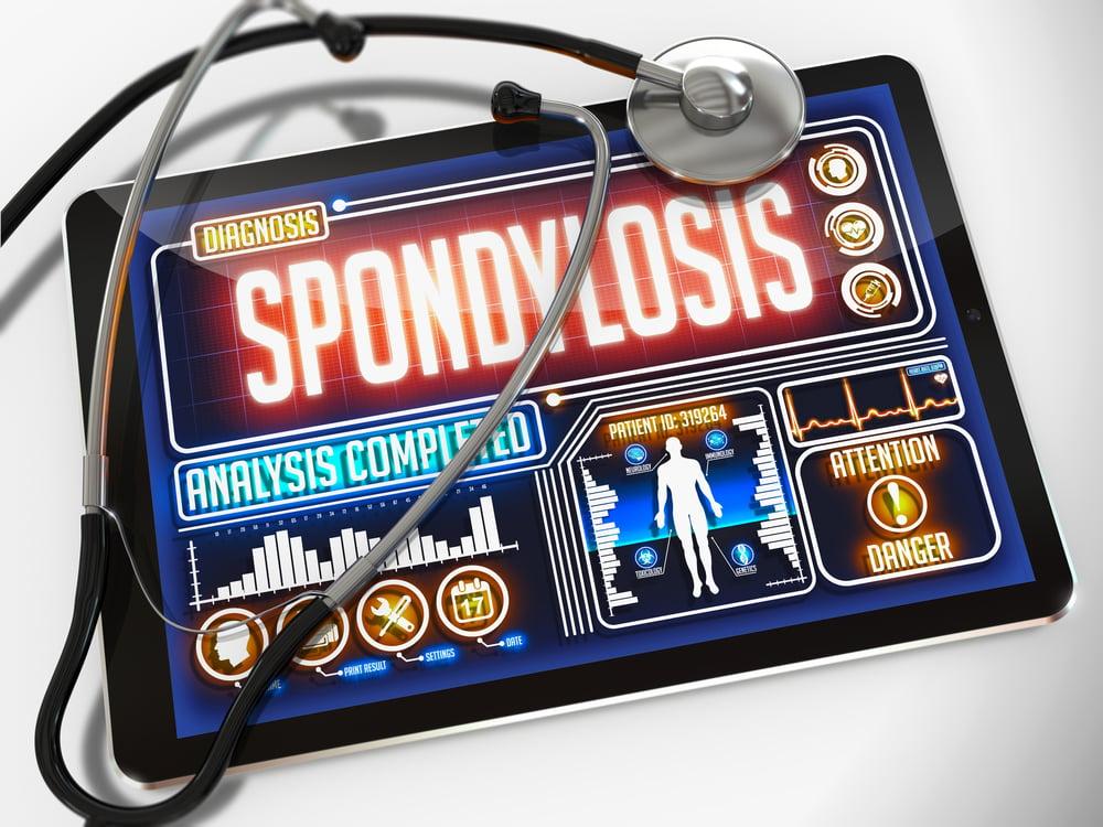 numbness symptoms of cervical spondylosis