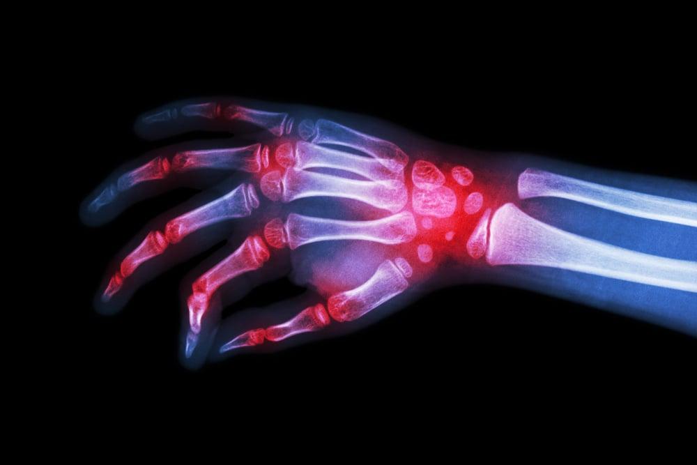 pain Myositis