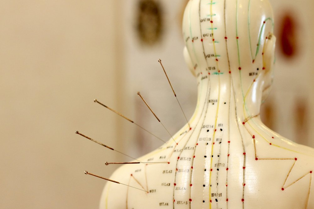acupuncture treatments for insomnia