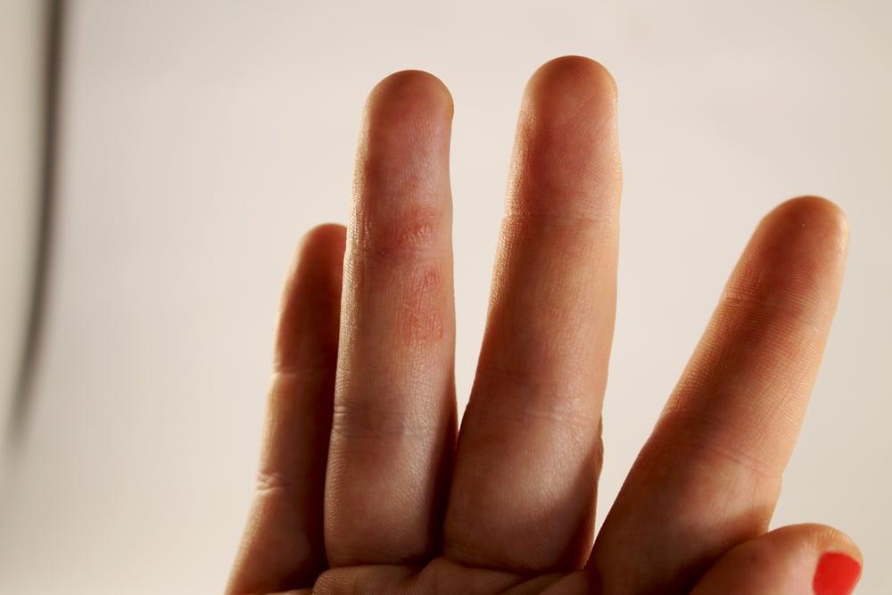 rashes symptoms of syphilis