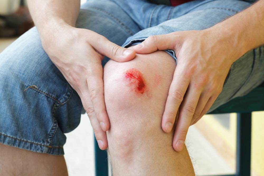 easy bleeding Myelofibrosis cancer