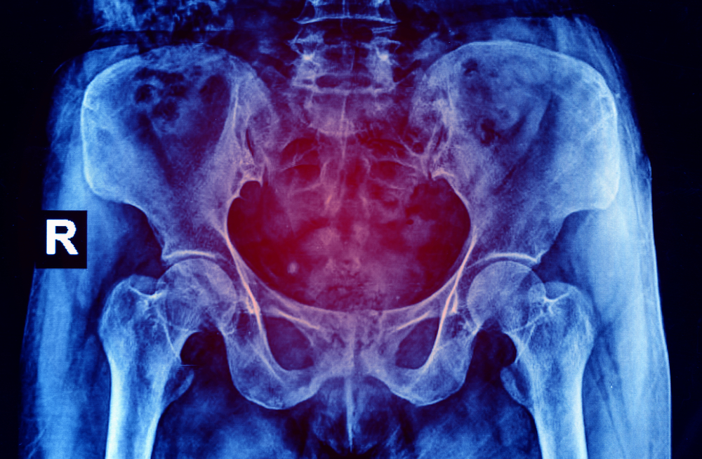 pain bacterial vaginosis