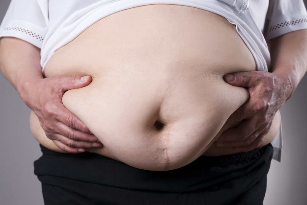 Metabolic Syndrome obesity