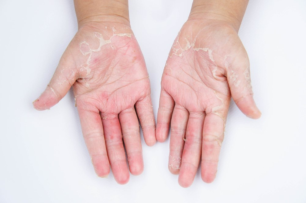 skin conditions latex