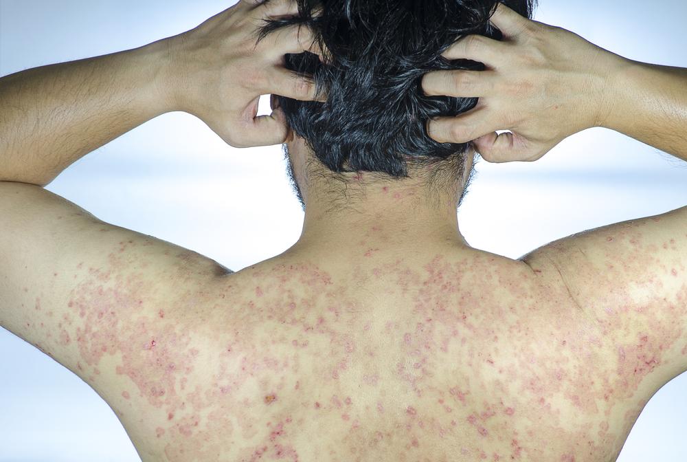 immune vitiligo