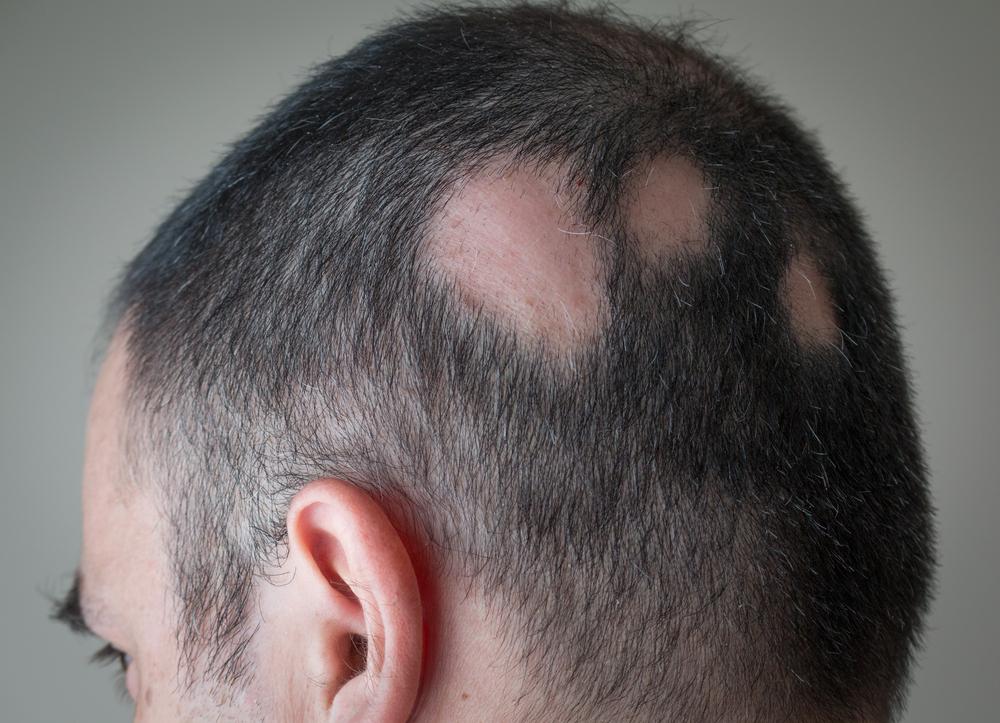 alopecia vitiligo