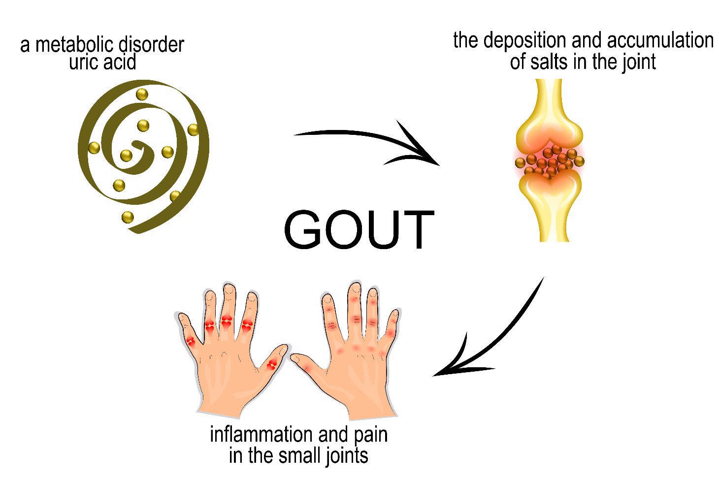 signs of gout