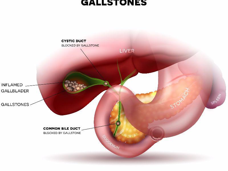 gallstones parsley
