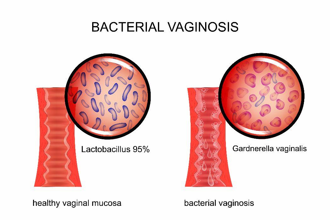 discharge bacterial vaginosis