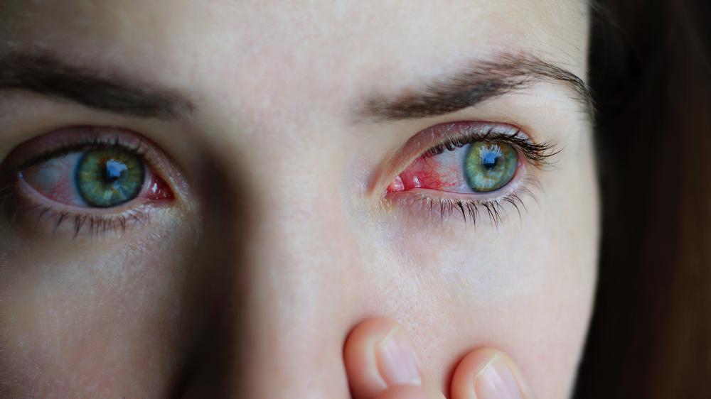 symptoms of chlamydia in women blindnness