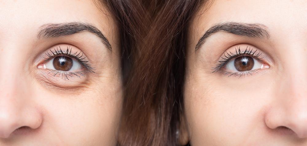 eye lump cancer