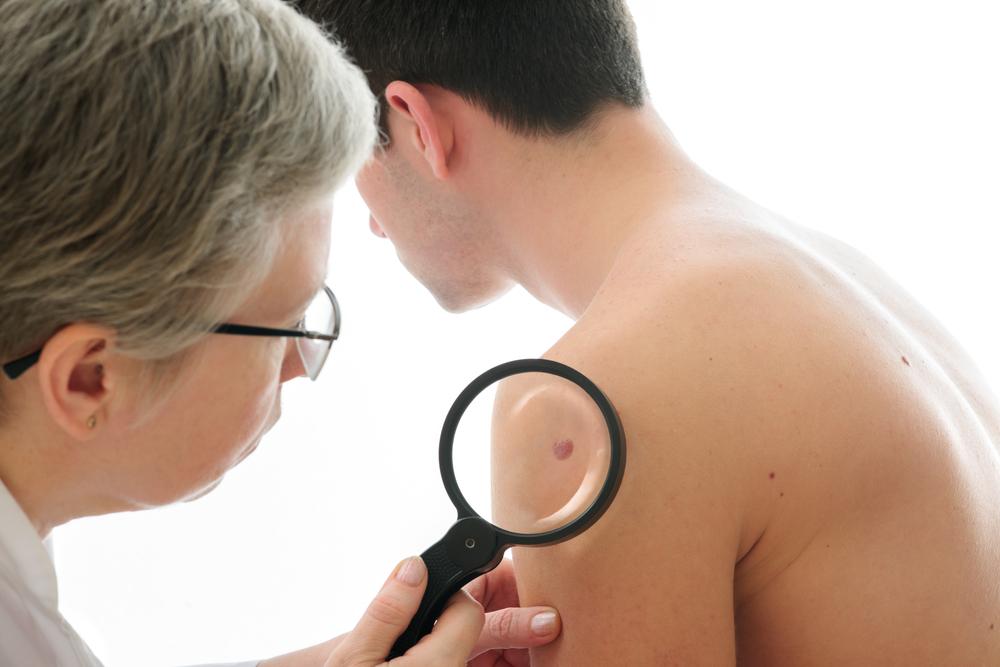 skin cancer taking aspirin