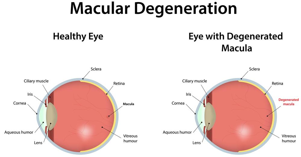 macular degeneration poor vision